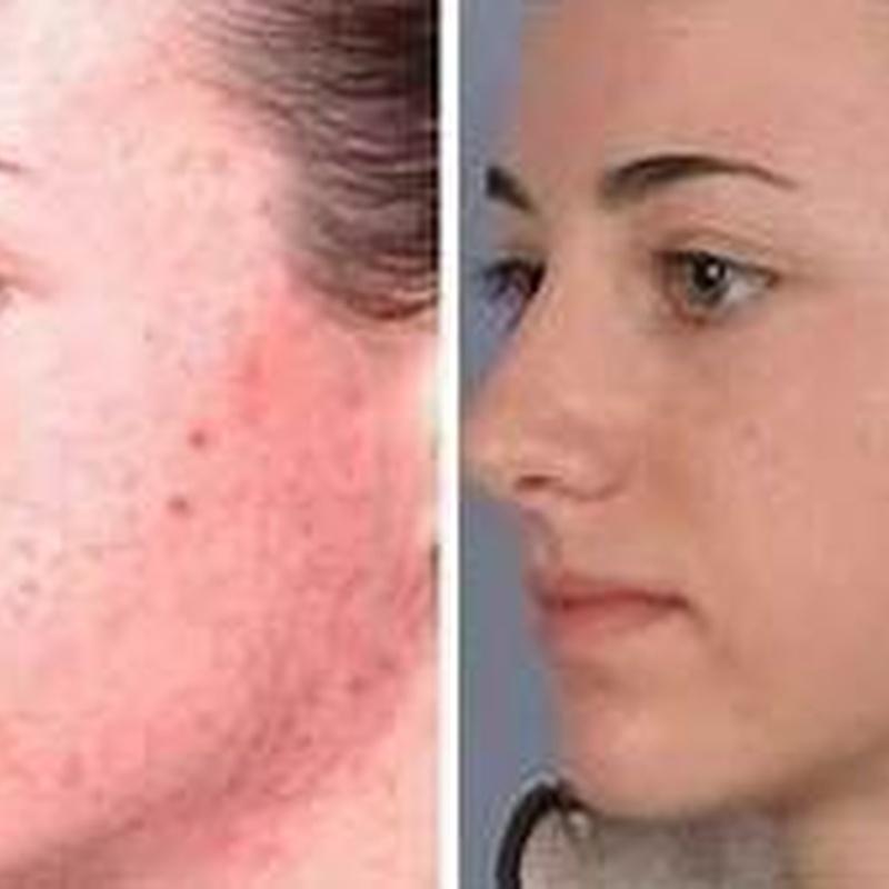 Dermoabrasión: Estética facial: Servicios de C. López