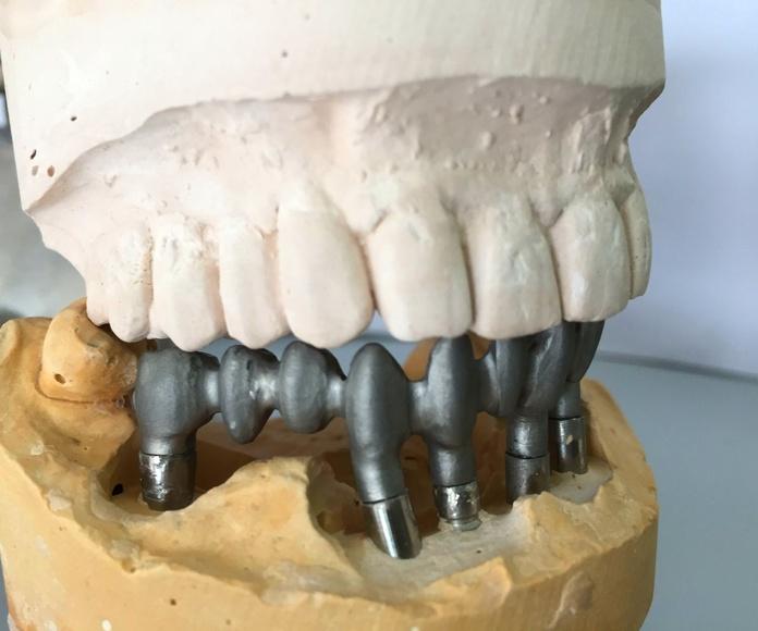 Implantología: Tratamientos de Dentalart