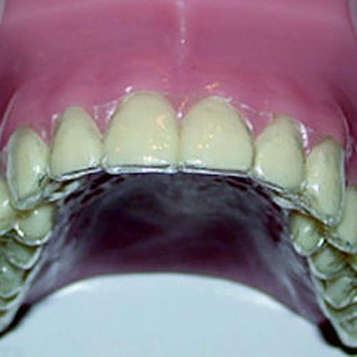 Ortodoncia infantil Donosti