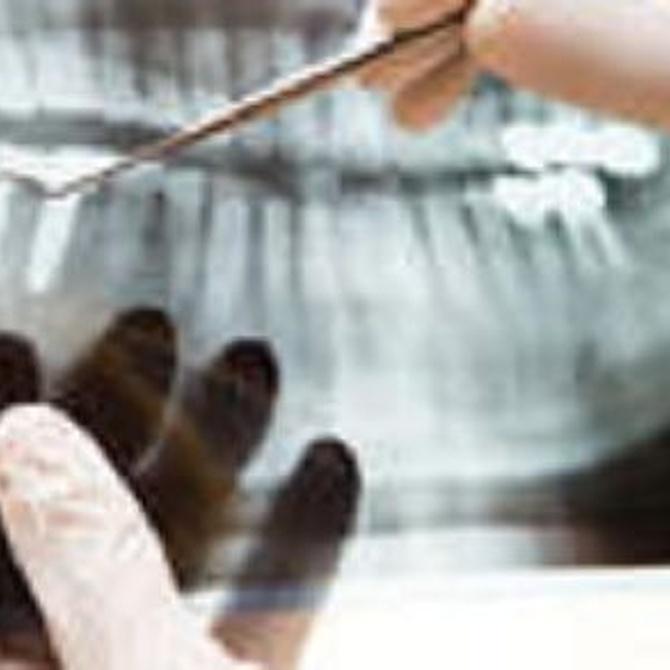 La importancia del escáner dental