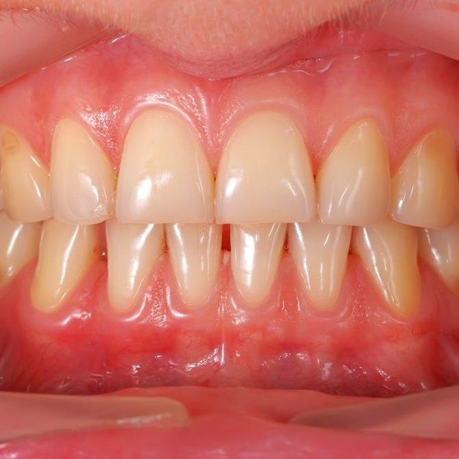 Causas del amarillamiento de los dientes