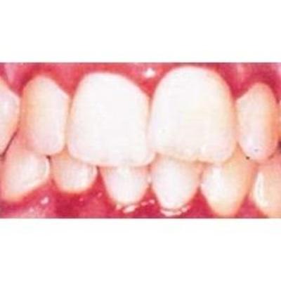 Todos los productos y servicios de Dentistas: Clínica Médico Dental Albelu