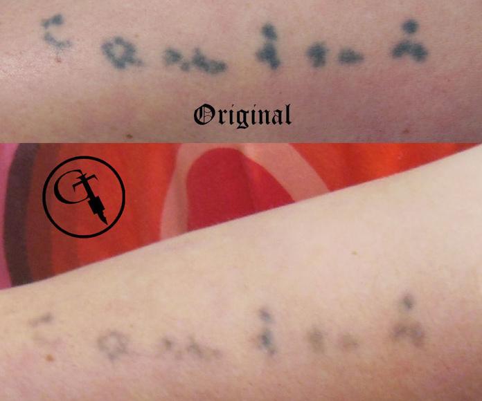 Eliminación de tatuajes: Tatuajes de Estudio de Chus Tattoo