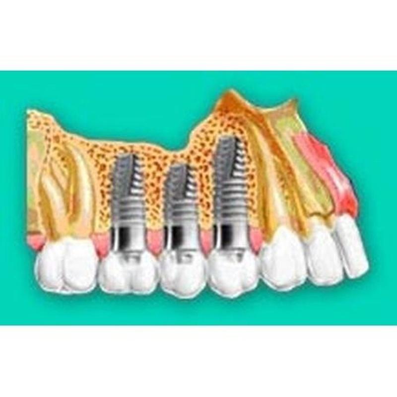 Implantes: Tratamientos de Leandro Romero Esteban