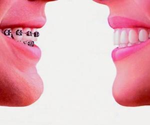 Ortodoncia Basauri