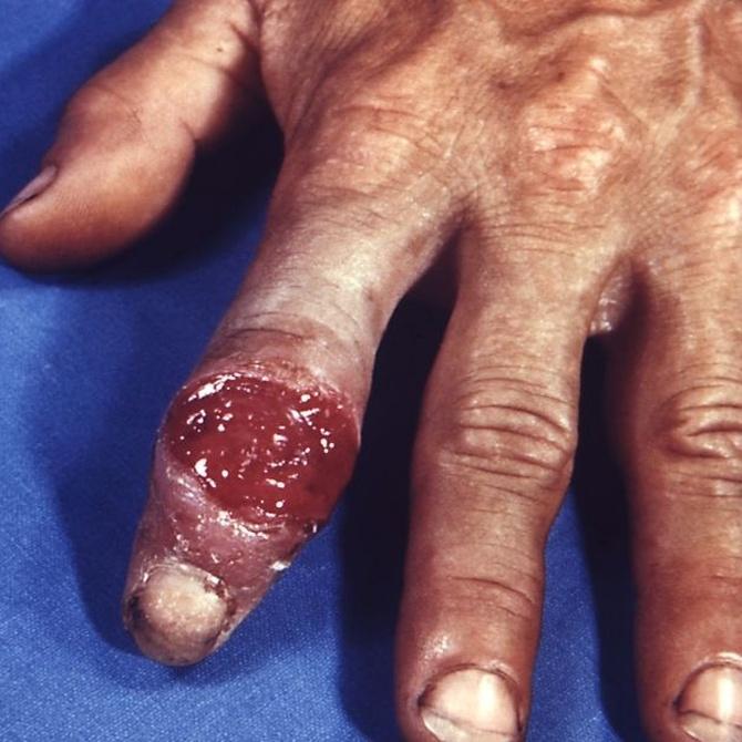 ¿Qué es la sífilis?