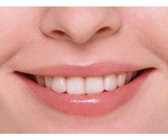 Implantes: Tratamientos de Clínica Dental Humanes 61