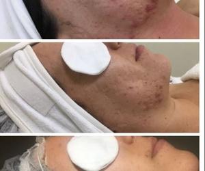 Tratamientos faciales  : Jana Bosch Advanced Beauty