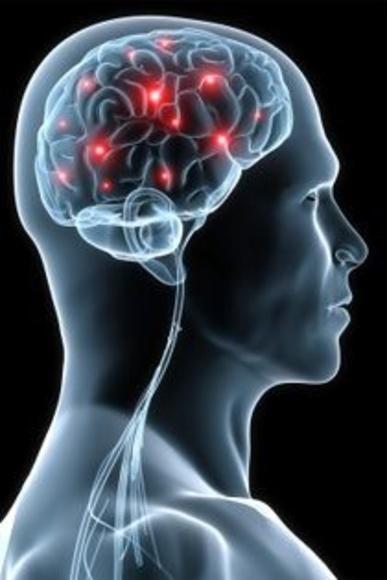 Fisioterapia Neurólogica: Servicios de Sananova Fisioterapia