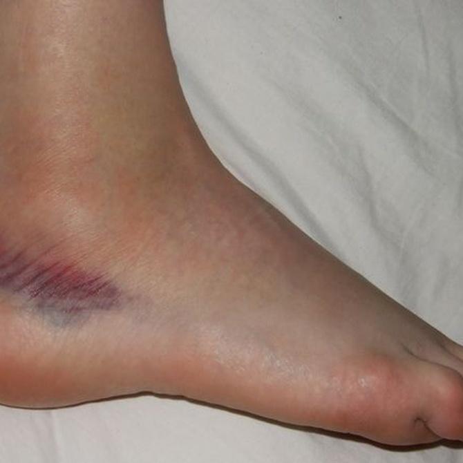 Las lesiones más comunes al bailar