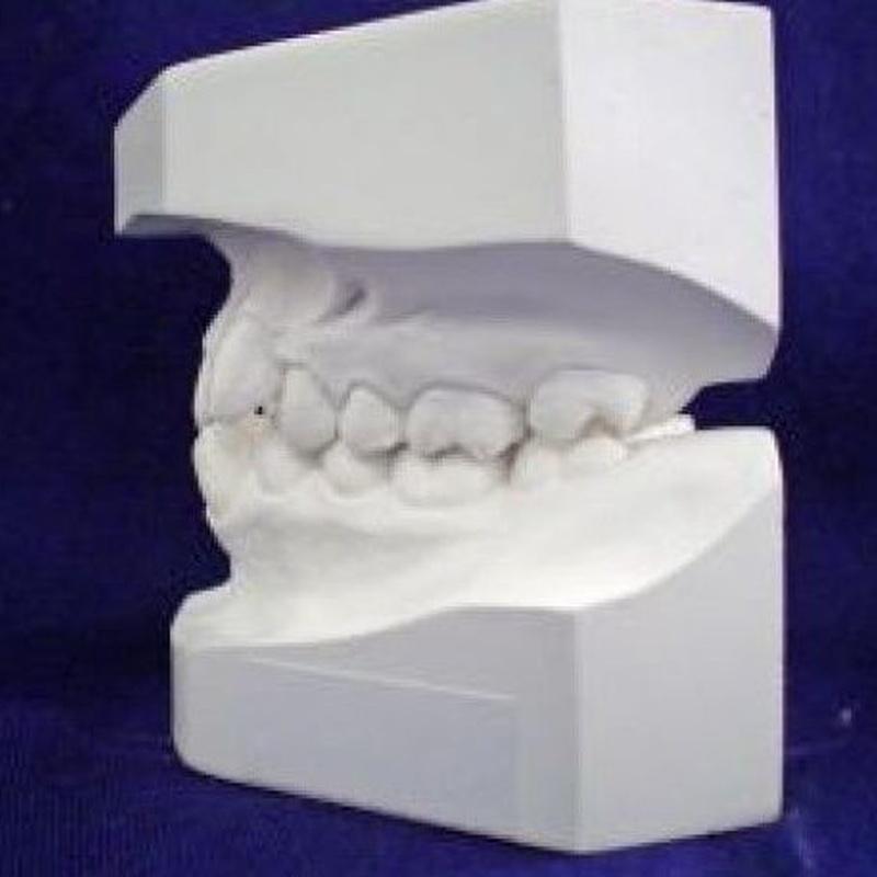Brackets estéticos: Servicios de Vicálvaro Dental - Clínica Dental