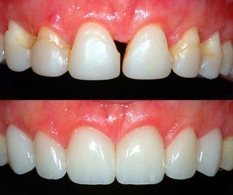 Prótesis Removibles: Tratamientos de Clínica Dental Les Mèlies