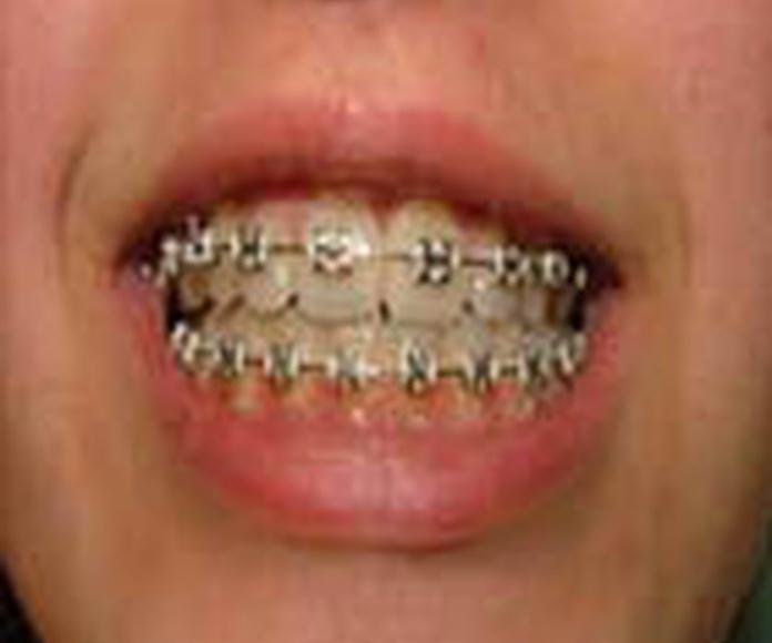 Ortodoncia: Servicios de Clínica Implanteoral Milladoiro