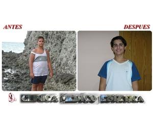 Perder peso con salud