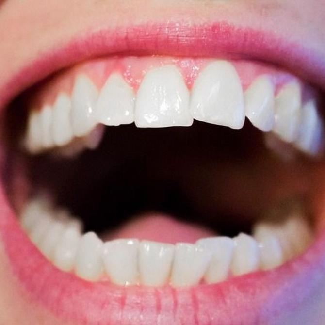 Cómo mantener el blanqueamiento dental