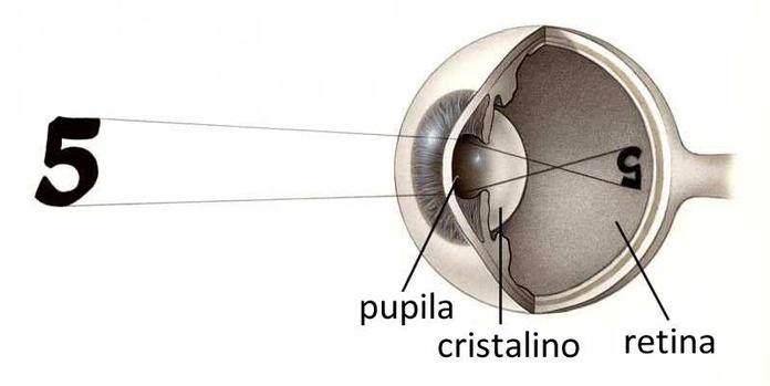 Lentes para alta miopía:  Especialidades Oftalmológicas de Clínica Rementeria