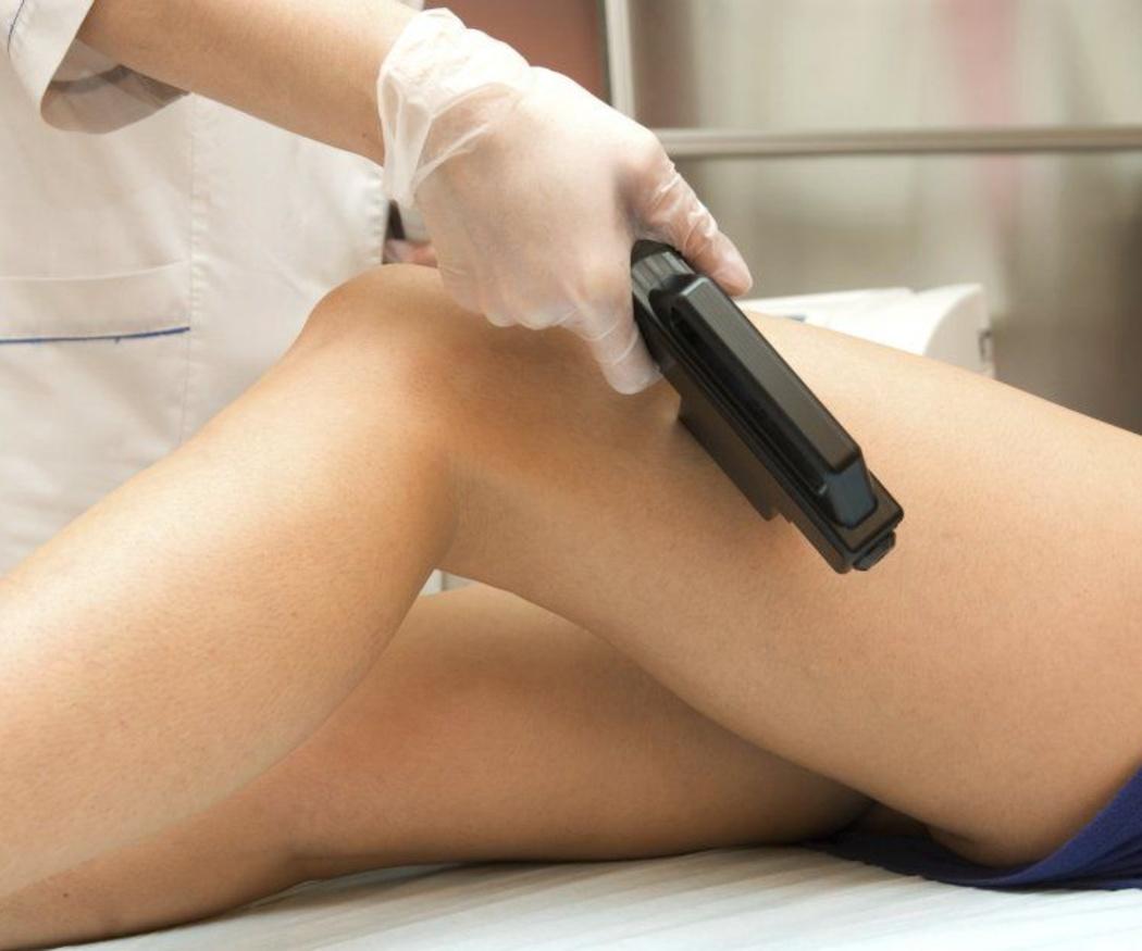 Cómo cuidar la piel tras las sesiones de fotodepilación