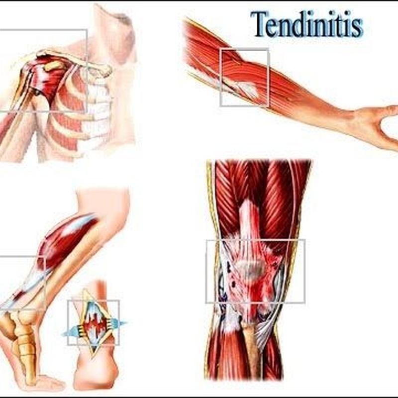 Tratamiento Tendinitis Fisiomas Murcia