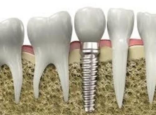 Implantología dental Bilbao