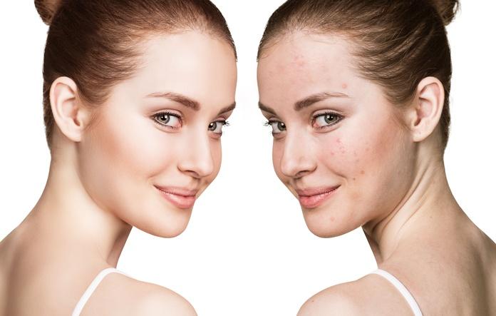 Tratamiento facial para el acné: Nuestros Servicios de Centro de Belleza Mª Ángeles