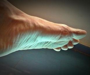 ¿Sabes qué son los dedos en garra?