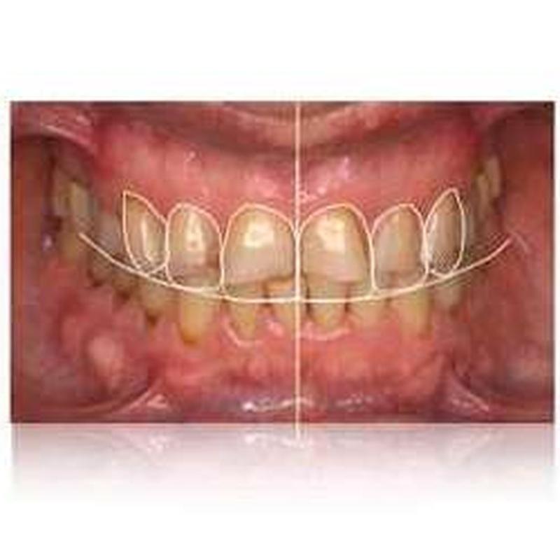 DISEÑO DE SONRISA DIGITAL: Servicios de Clínica Dental Dra. Belkys Hernández Cabrera