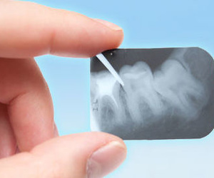 Radiografías panorámicas y oclusales