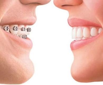 Clinica ortodoncia Burgos