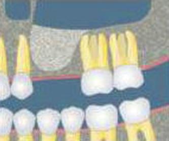 IMPLANTES CON CIRUGÍA: Tratamientos de Clínica Dental Ángel Artiz
