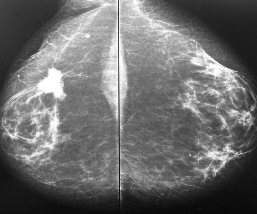 El diagnóstico precoz del cáncer y la prevención pueden salvarte la vida