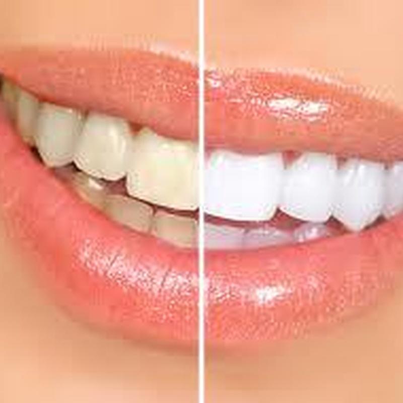 Blanqueamientos dentales: Servicios  de Centro Dental Bizkai-Dent