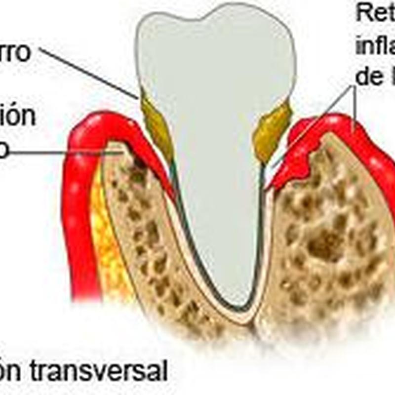 Periodontitis: Tratamientos de Hospident Clínica Dental