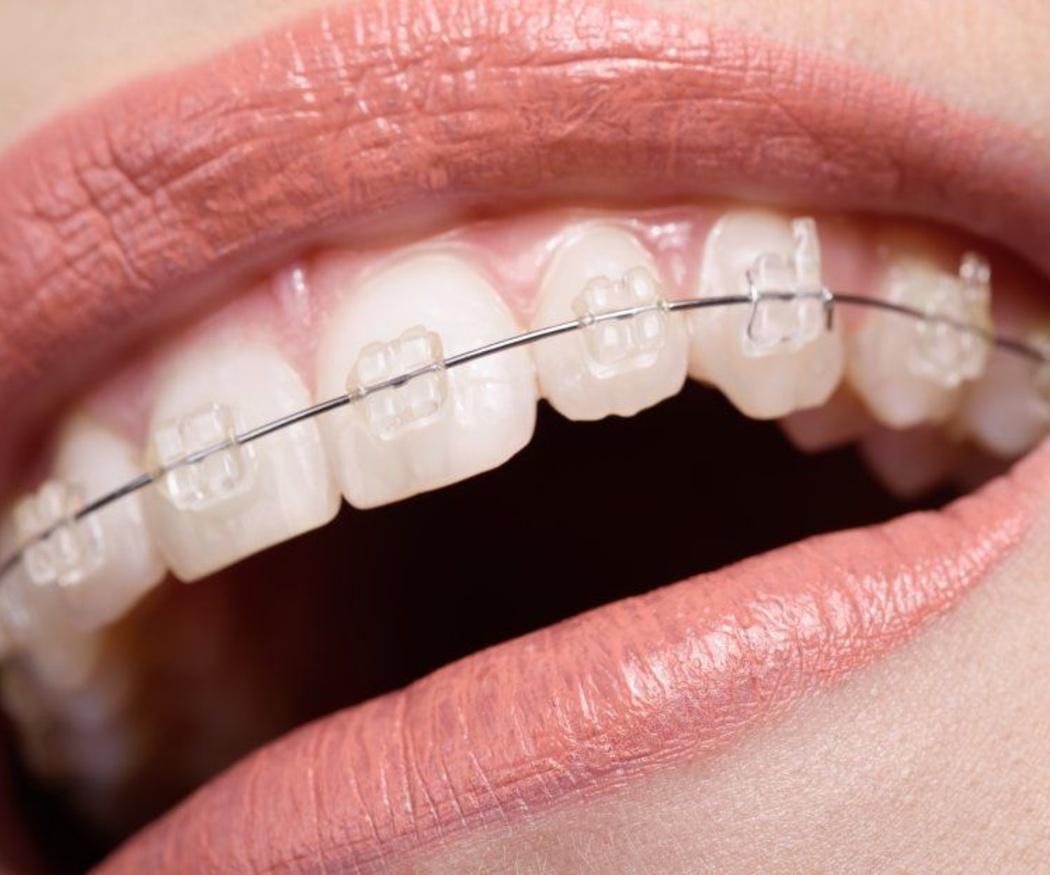Razones para optar por la ortodoncia invisible