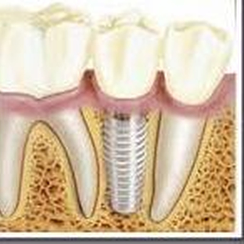 Implantes: Tratamientos de Centro Dental Innova