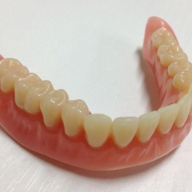 Ventajas de las prótesis dentales removibles