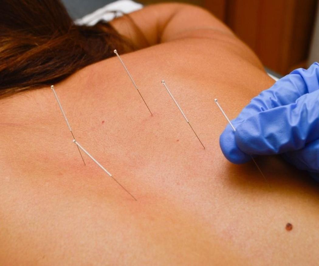 ¿Qué sabes de la acupuntura?