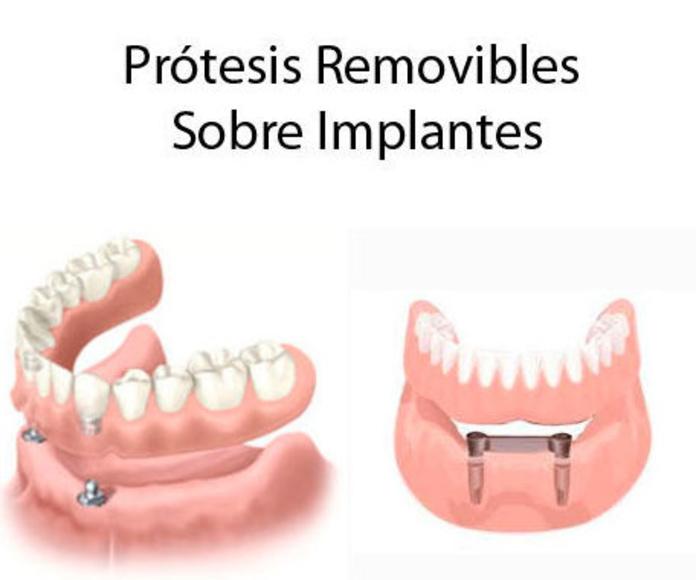 Implantes desde 199€: Servicios & Tratamientos of Eurodent Clínica Dental