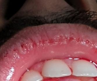Estética y diseño de la sonrisa: Nuestros Tratamientos de Clínica Dental Rafael Menéndez