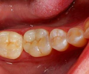 Galería de Clínica dental en Madrid | Clínica Dental Dres. Nuñez García