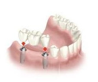Teleradiografia: Servicios  de Centro Dental Bizkai-Dent