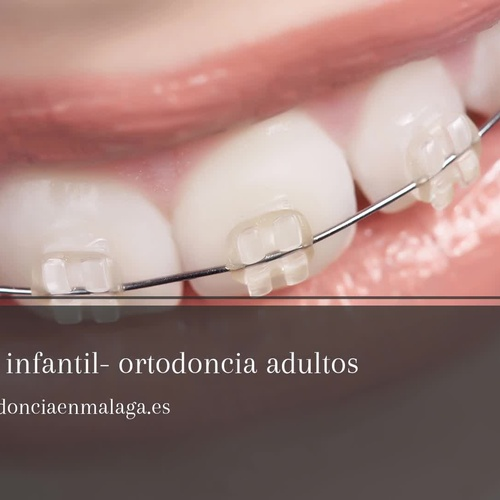 Clínica de Ortodoncia Pedro Moreno | Presupuesto de ortodoncia en Málaga