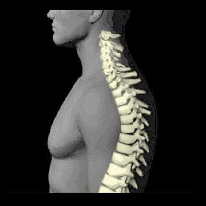 Síntomas de una hernia discal cervical