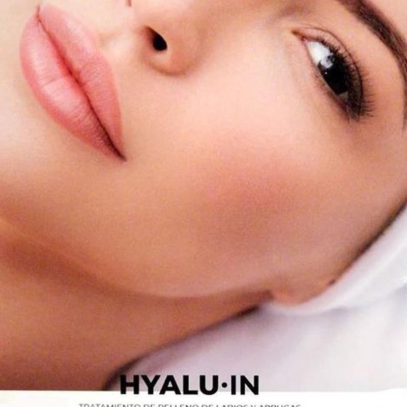 Tratamiento de relleno de labios y arrugas Benicarló