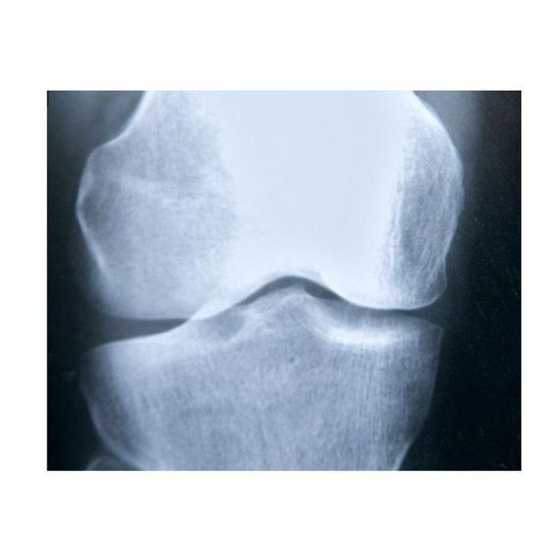 Osteoporosis: Nuestros Tratamientos de Clínica Ginecológica Dr. Silva