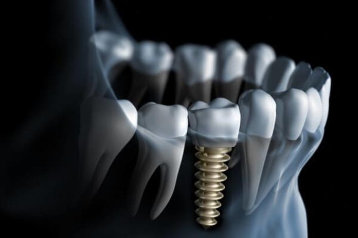 Implantología: Tratamientos y tecnología  de Clínica Dental Los Milagros