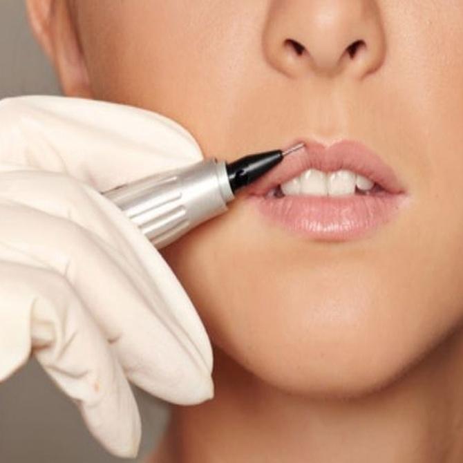 ¿Cómo funciona el botox?