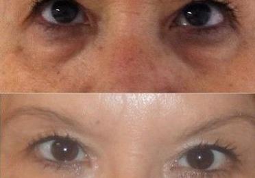Oculoplástica, rejuvenecimiento periocular, blefaroplastia, láser, ojeras..