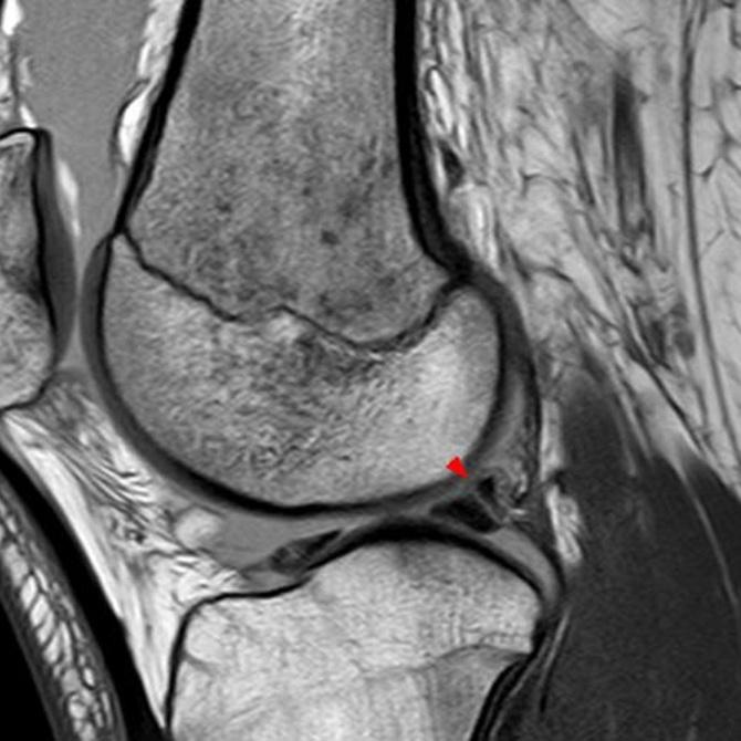 ¿Qué es una rotura de menisco?