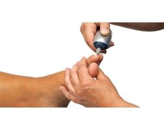 Callosidades: Servicios de Podonet  Podología y Fisioterapia