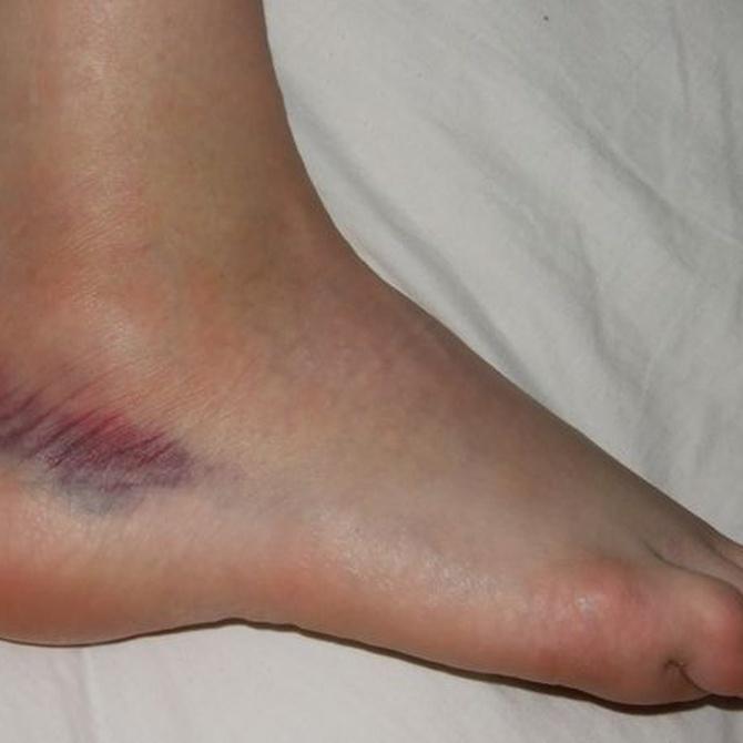 Las lesiones más comunes en el baile
